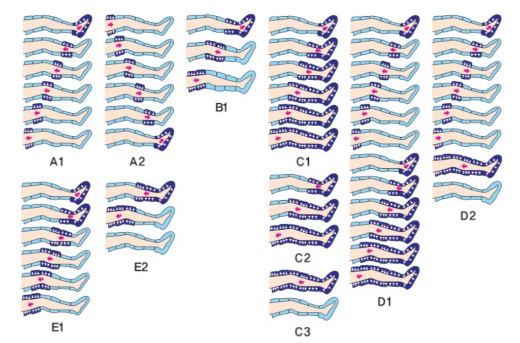 Lymphdrainage-12Kammer-Ganzkörperanzug-Funktion